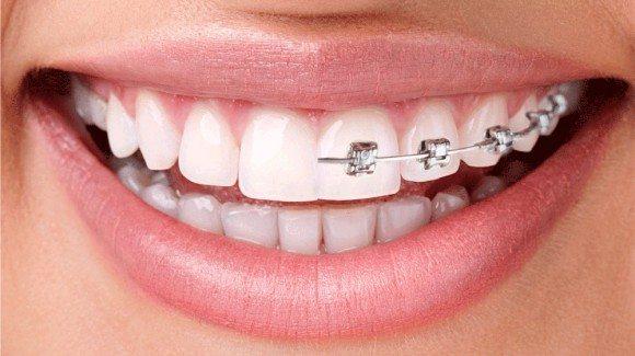 ortodontinis_gydymas