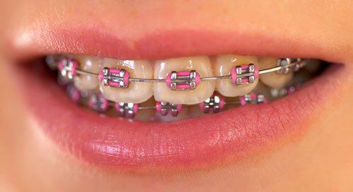 pirmoji pagalba ortodontiniams aparatams