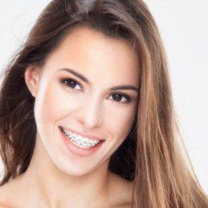 Ortodontinis gydymas: kaip prižiūrėti dantis?